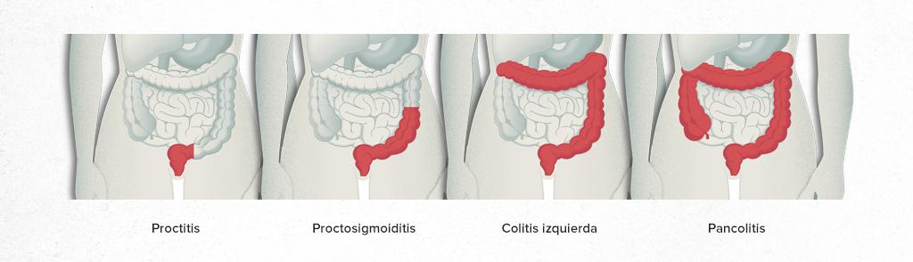 Colitis Ulcerosa - Hospital Clínic