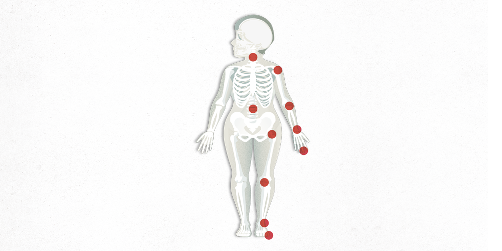significado de artrosis linear unit anatomia