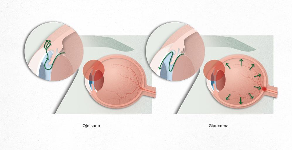 Anal Glaucoma Women's Plus Size