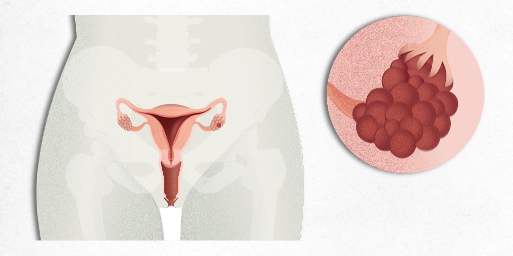 ovarian cancer lump